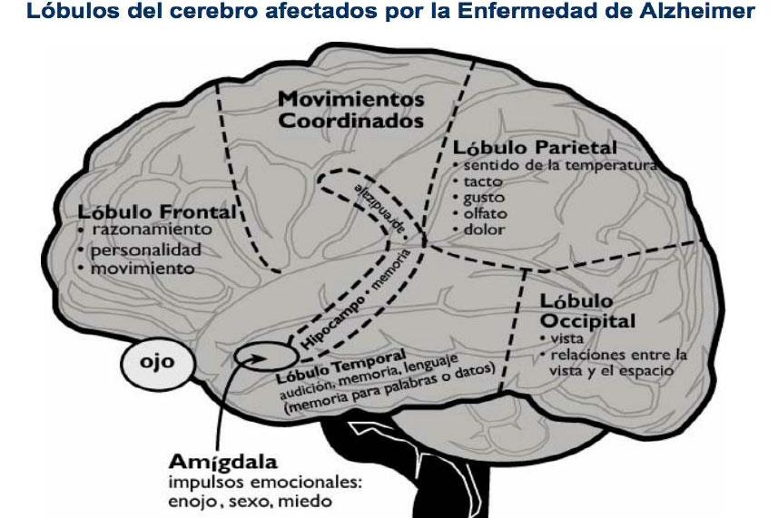 Lóbulos del cerebro afectados por la Enfermedad de Alzheimer.